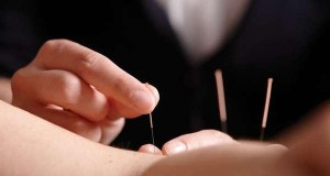 SE5 Acupuncture